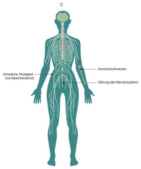 Gewichtsverlust und Lungenentzündung