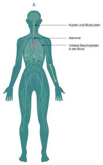 Rücken der im schmerzen brust brennen in und Druck auf